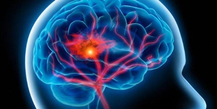 روش موثر برای کاهش سکته مغزی در زنان